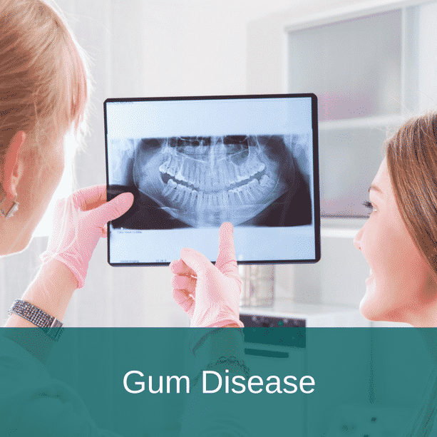 Middleton Bank Dental Gum Disease