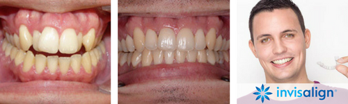 invisalign-clear-braces 3